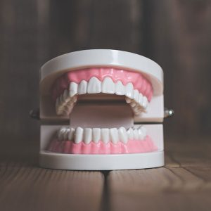 Missing Teeth – What Do I Do Now?