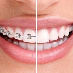Simcoe Family Dentistry is now Offering Invisalign (Clear Aligners)!
