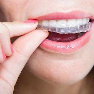 """Invisalign Clear Aligners vs """"Those Smile Clubs"""""""
