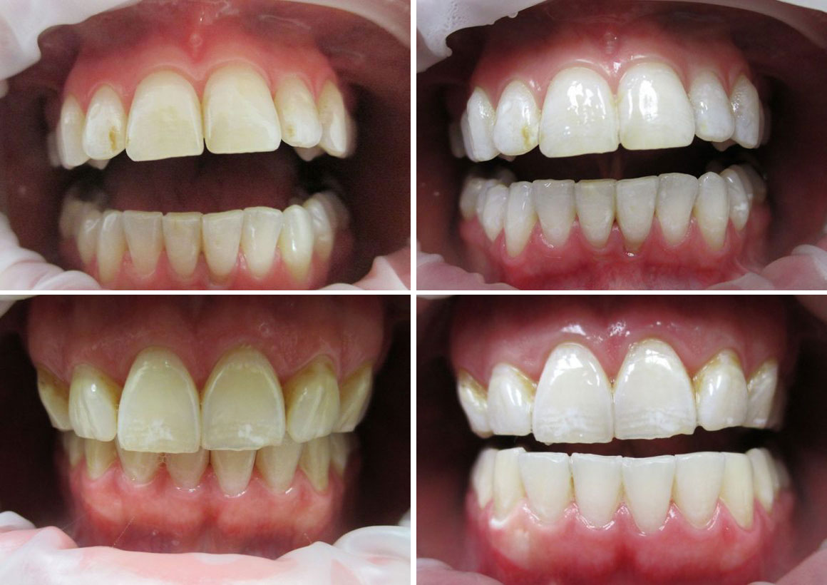 Teeth Whitening In Barrie Simcoe Family Dentistry