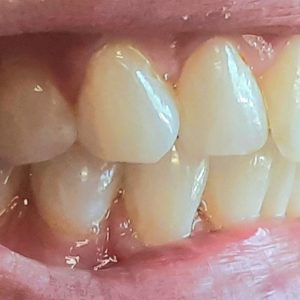 Cold Sensitivity – Is it Due to Gum Recession?