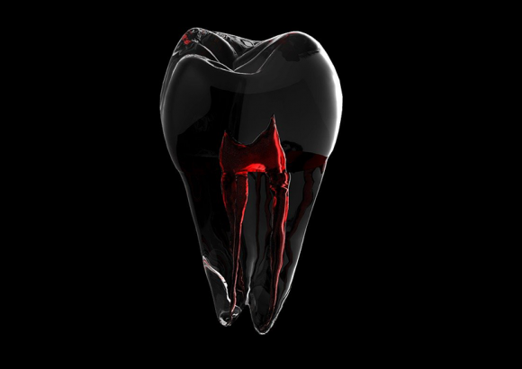 What Can I Expect During a Root Canal?