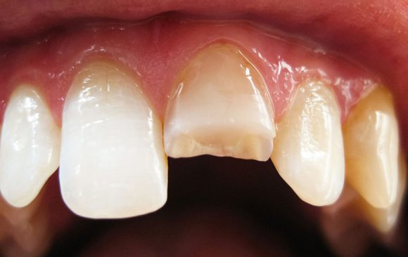 The Covid-19 Pandemic:  Hard on your Teeth!